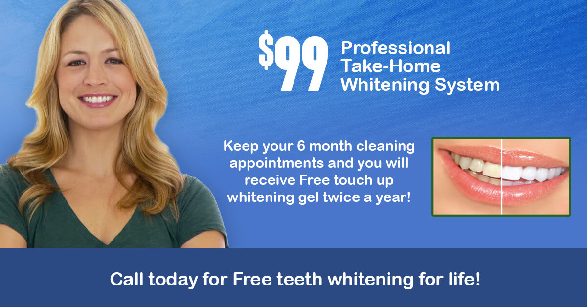 ad for take-home teeth whitening kit special offer
